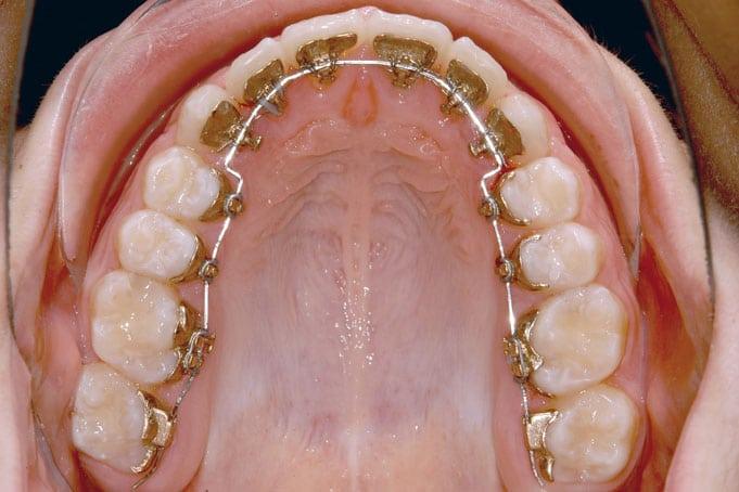 Ortodoncia lingual Incognito, la ortodoncia invisible 100% personalizada 2