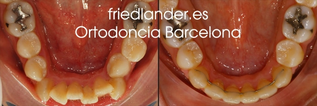 extracción dental en ortodoncia