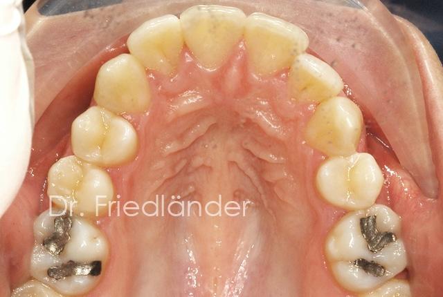 ¿Porqué hacemos extracciones en ortodoncia? 1