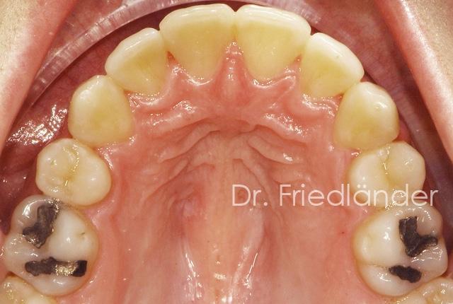 ¿Porqué hacemos extracciones en ortodoncia? 2