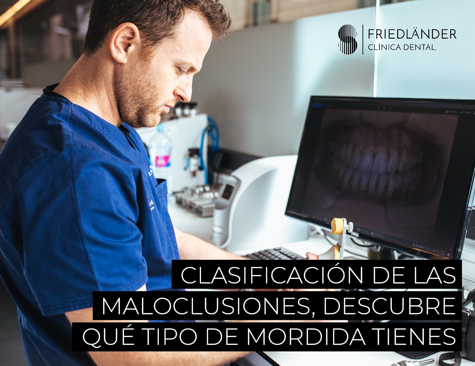 maloclusión dental