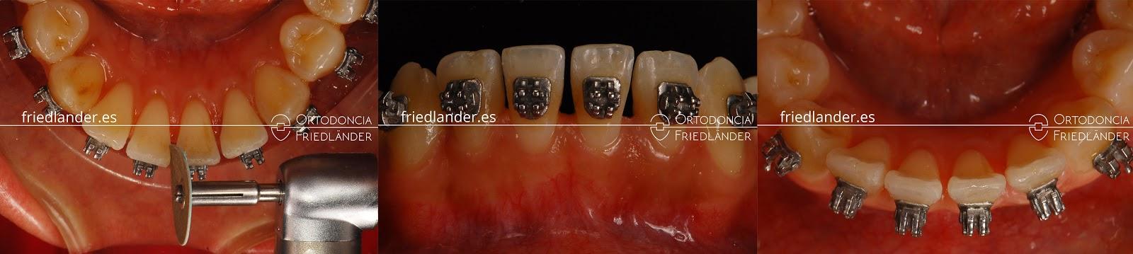 """""""Stripping"""" o reducción interproximal del esmalte para ganar espacio en ortodoncia 10"""