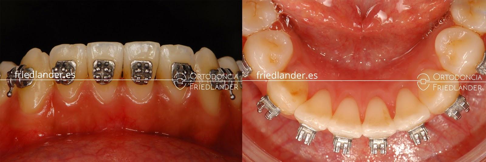 """""""Stripping"""" o reducción interproximal del esmalte para ganar espacio en ortodoncia 12"""