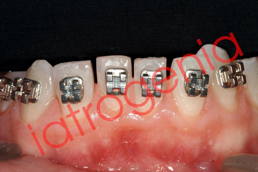 """""""Stripping"""" o reducción interproximal del esmalte para ganar espacio en ortodoncia 5"""
