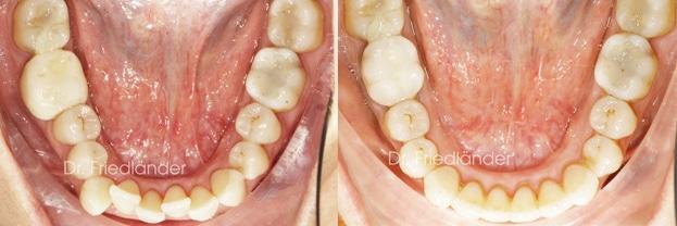 """""""Stripping"""" o reducción interproximal del esmalte para ganar espacio en ortodoncia 2"""
