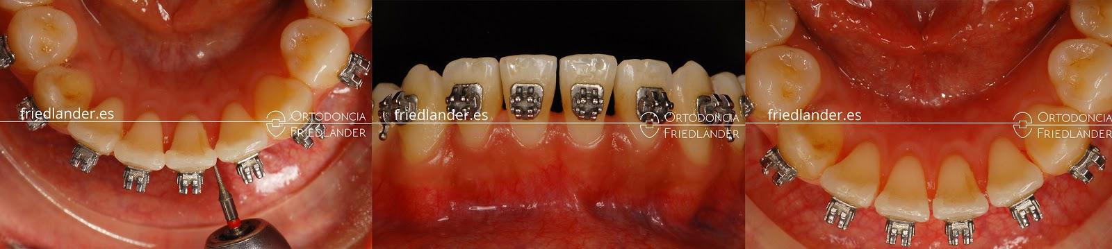 """""""Stripping"""" o reducción interproximal del esmalte para ganar espacio en ortodoncia 7"""