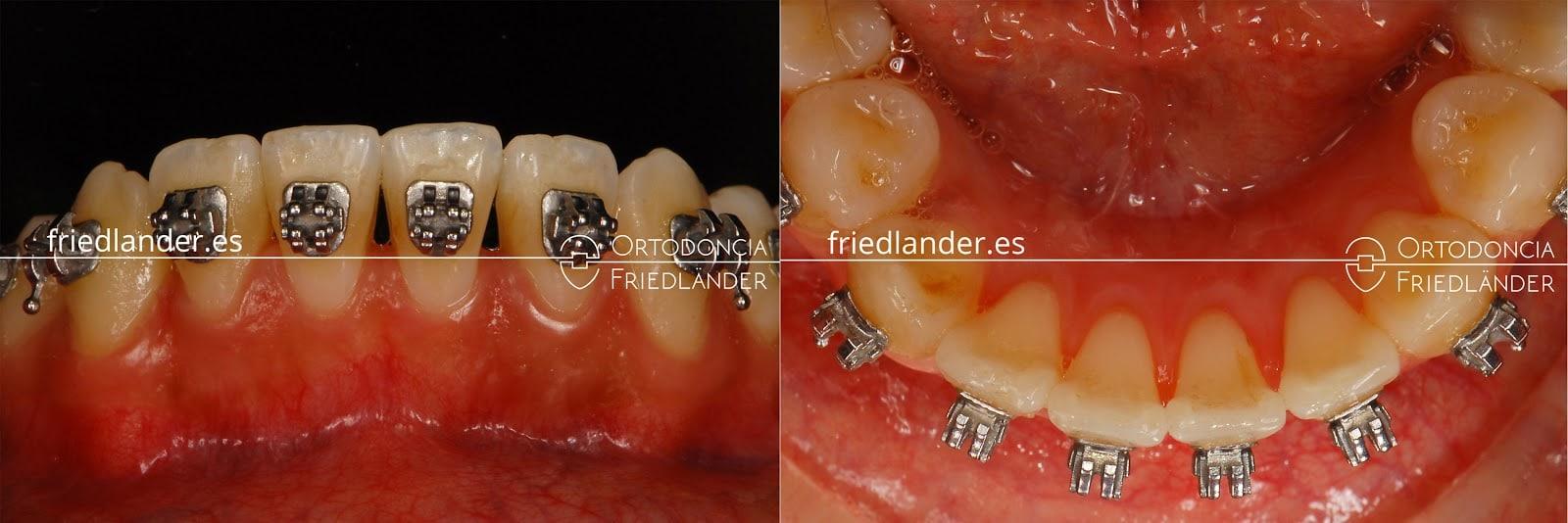 """""""Stripping"""" o reducción interproximal del esmalte para ganar espacio en ortodoncia 6"""