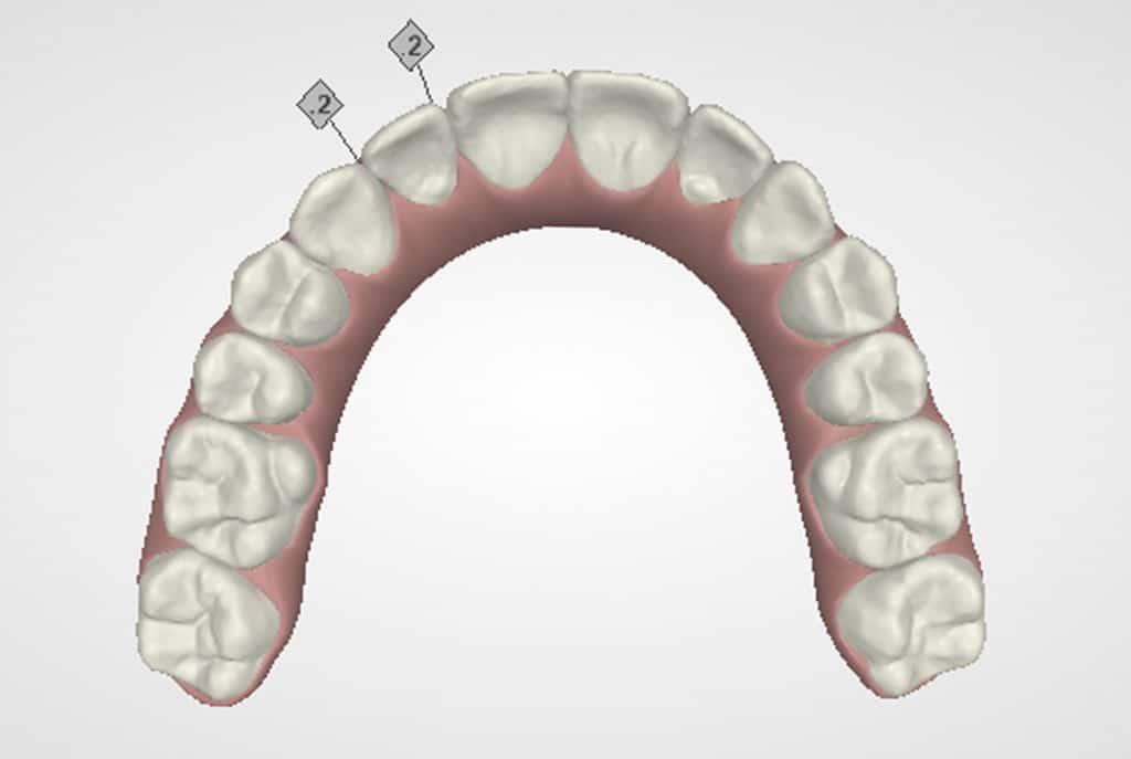"""""""Stripping"""" o reducción interproximal del esmalte para ganar espacio en ortodoncia 4"""