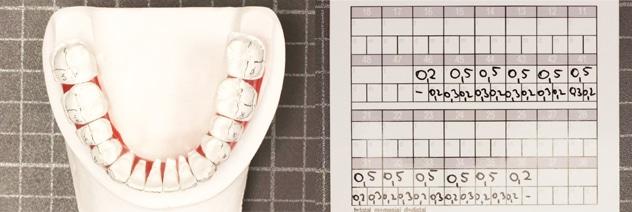 """""""Stripping"""" o reducción interproximal del esmalte para ganar espacio en ortodoncia 3"""