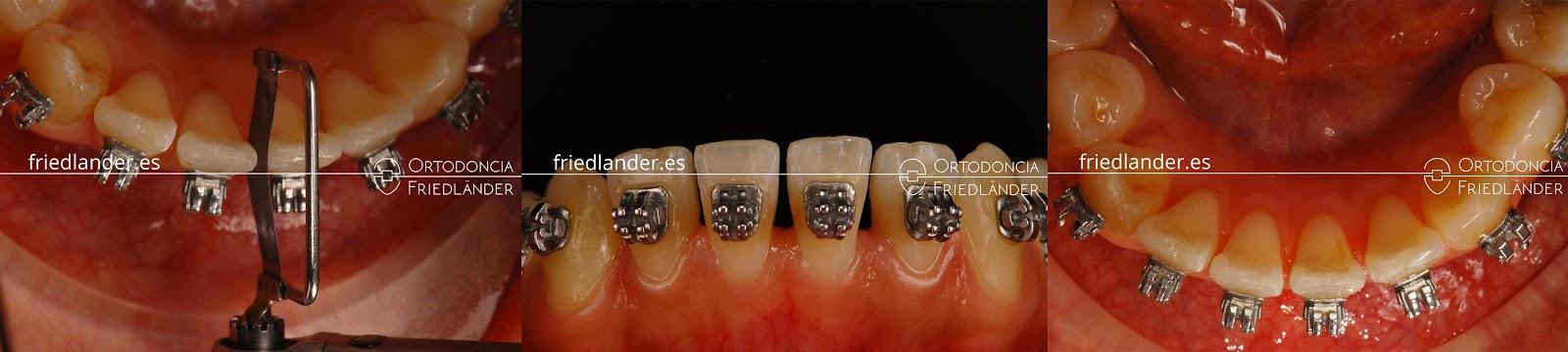 """""""Stripping"""" o reducción interproximal del esmalte para ganar espacio en ortodoncia 9"""