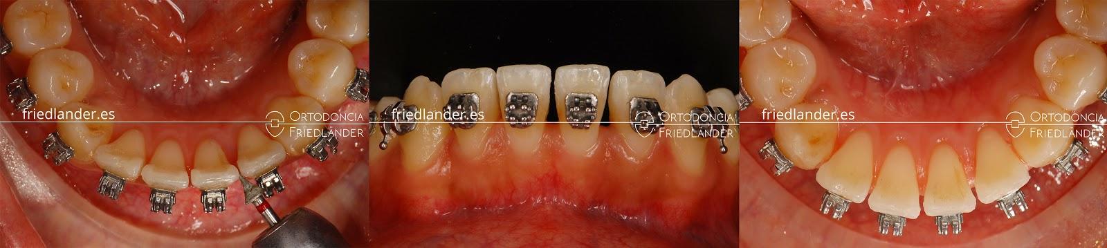 """""""Stripping"""" o reducción interproximal del esmalte para ganar espacio en ortodoncia 8"""