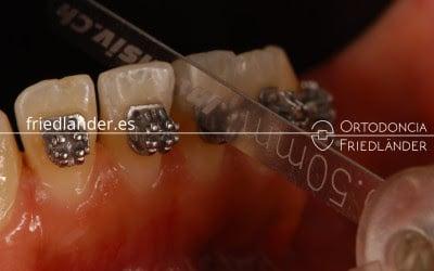 """""""Stripping"""" o reducción interproximal del esmalte para ganar espacio en ortodoncia 1"""