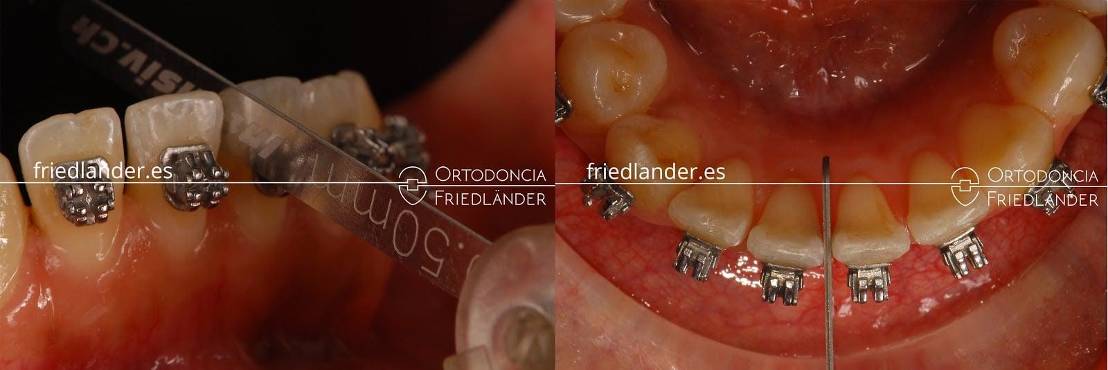 """""""Stripping"""" o reducción interproximal del esmalte para ganar espacio en ortodoncia 11"""