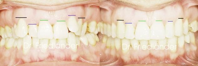 Anatomía de la sonrisa: nivelación de los márgenes gingivales 1
