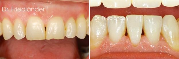 Troneras gingivales: tratamientos de ortodoncia estética 1