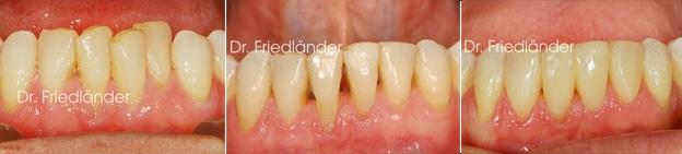 Troneras gingivales: tratamientos de ortodoncia estética 3