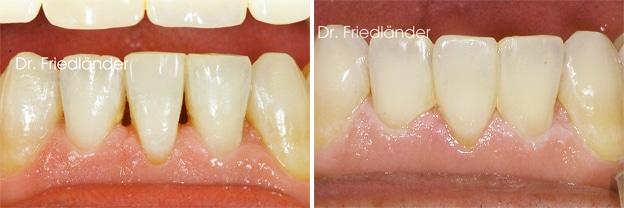 Troneras gingivales: tratamientos de ortodoncia estética 4