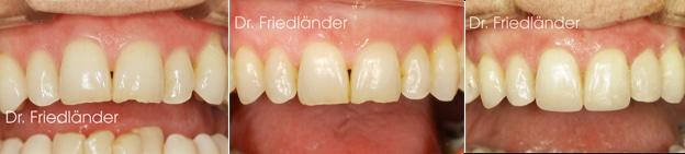 Troneras gingivales: tratamientos de ortodoncia estética 5