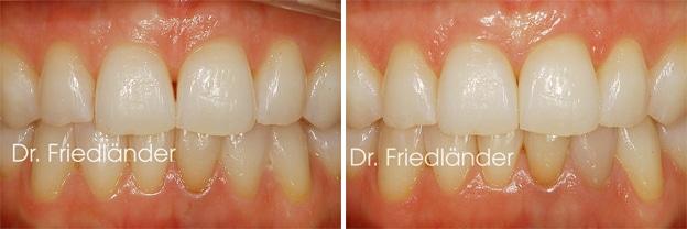 Troneras gingivales: tratamientos de ortodoncia estética 6