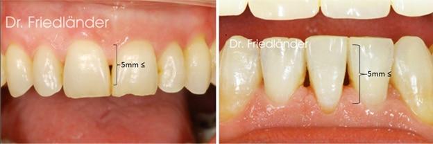 Troneras gingivales: tratamientos de ortodoncia estética 2