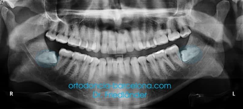 ¿De verdad mueven las muelas de juicio los dientes anteriores? 1