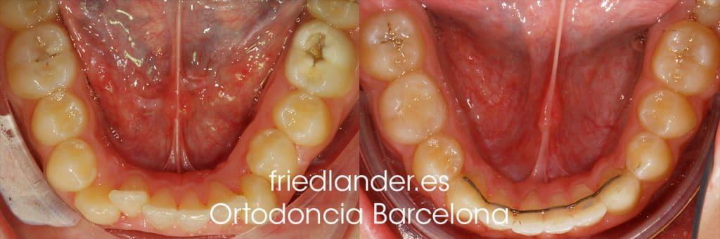 """""""Tengo los dientes montados, ¿Cómo lo puedo solucionar?"""" - clasificación y solución del apiñamiento dental 7"""