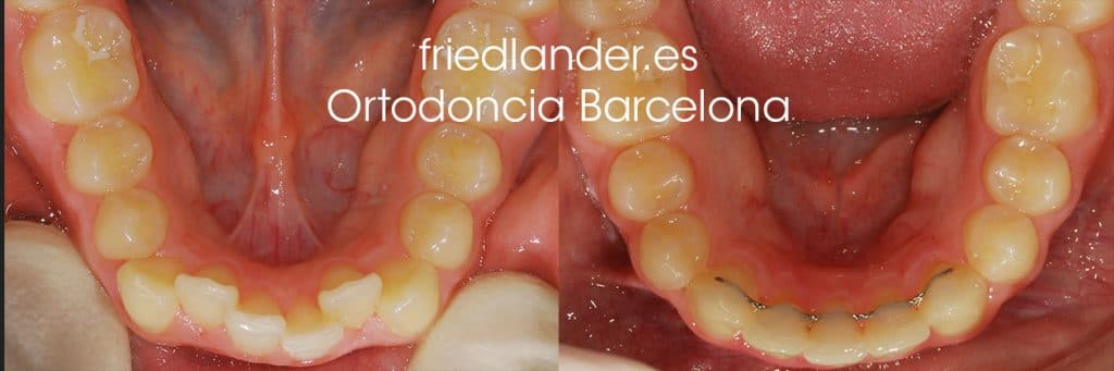 """""""Tengo los dientes montados, ¿Cómo lo puedo solucionar?"""" - clasificación y solución del apiñamiento dental 6"""