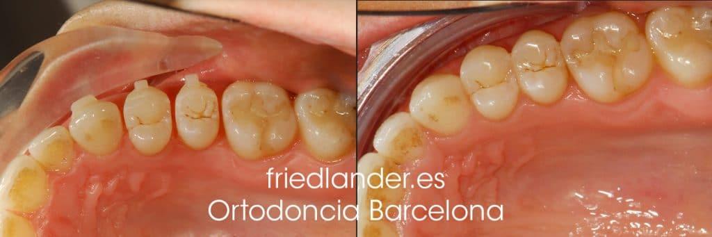 """""""Tengo los dientes montados, ¿Cómo lo puedo solucionar?"""" - clasificación y solución del apiñamiento dental 8"""