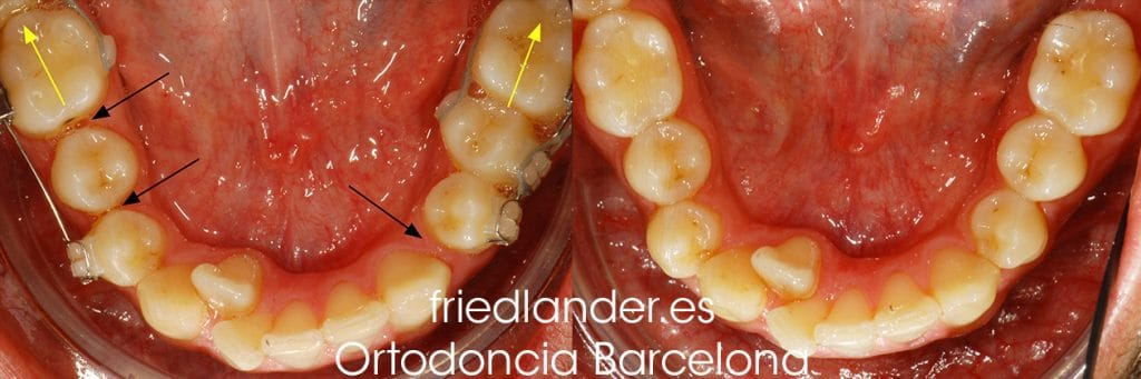"""""""Tengo los dientes montados, ¿Cómo lo puedo solucionar?"""" - clasificación y solución del apiñamiento dental 9"""