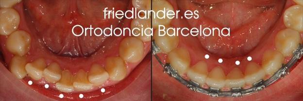 """""""Tengo los dientes montados, ¿Cómo lo puedo solucionar?"""" - clasificación y solución del apiñamiento dental 2"""