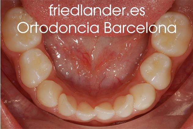 """""""Tengo los dientes montados, ¿Cómo lo puedo solucionar?"""" - clasificación y solución del apiñamiento dental 1"""