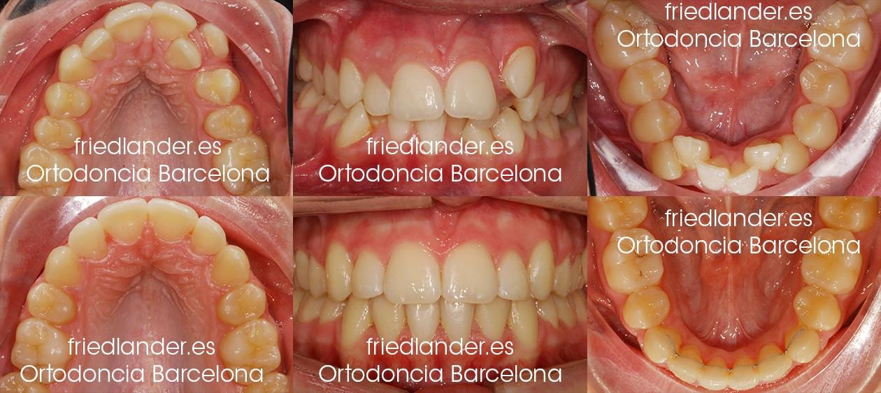"""""""Tengo los dientes montados, ¿Cómo lo puedo solucionar?"""" - clasificación y solución del apiñamiento dental 5"""
