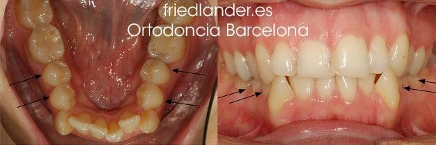 """""""Tengo los dientes montados, ¿Cómo lo puedo solucionar?"""" - clasificación y solución del apiñamiento dental 3"""