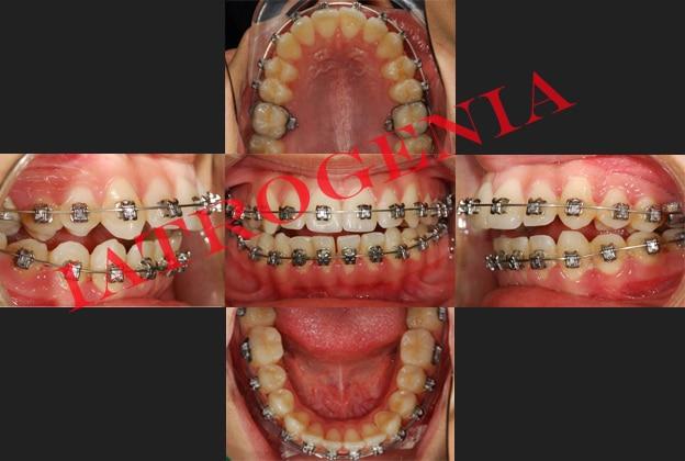 La diferencia entre alinear los dientes y realizar un tratamiento de ortodoncia - iatrogenia por doquier 3
