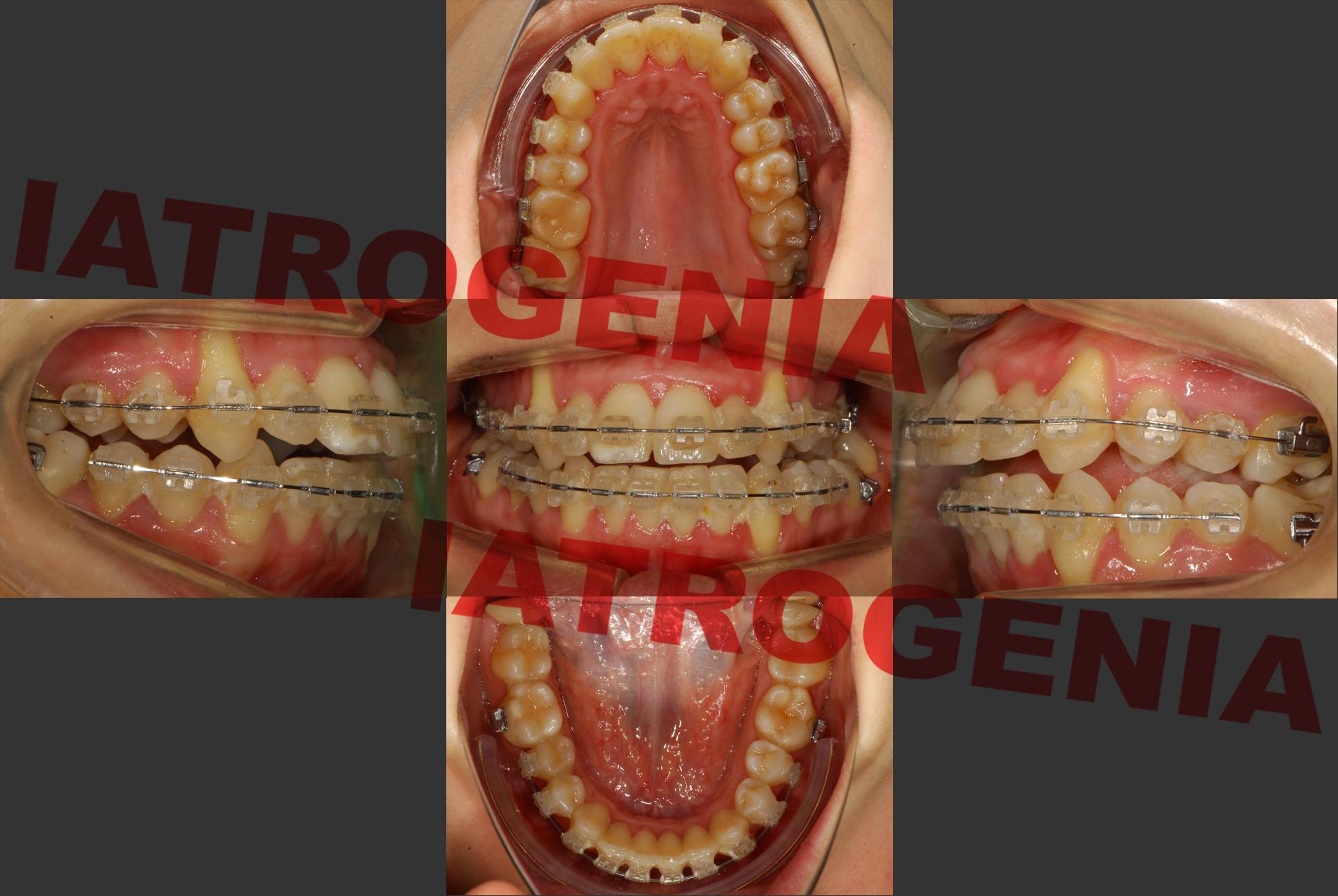 La paciente presenta recesiones gingivales severas, clase II, mordida abierta y cruzada, y no puede cerrar la boca correctamente.