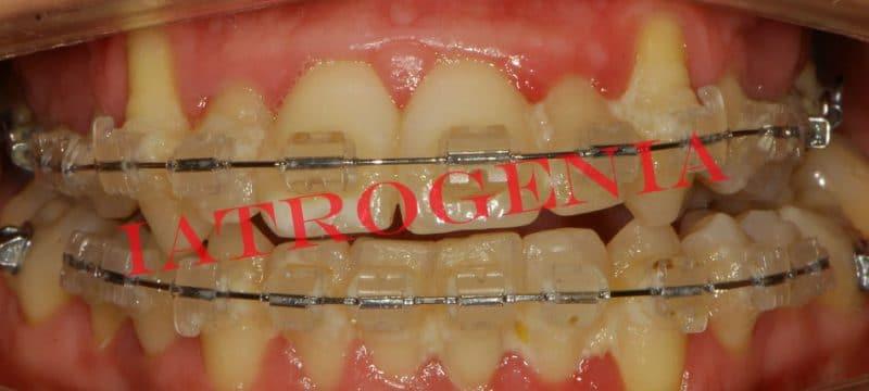 La diferencia entre alinear los dientes y realizar un tratamiento de ortodoncia - iatrogenia por doquier 1