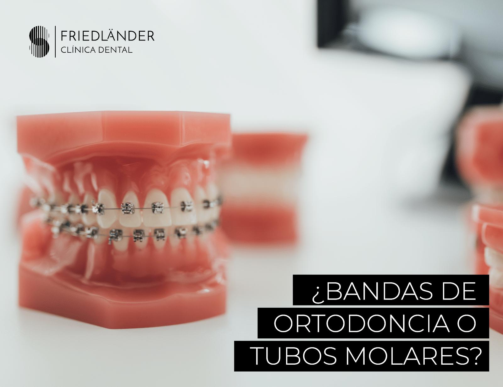 bandas de ortodoncia