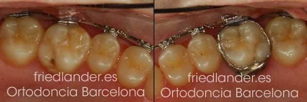 ¿Bandas de ortodoncia o tubos molares? 4