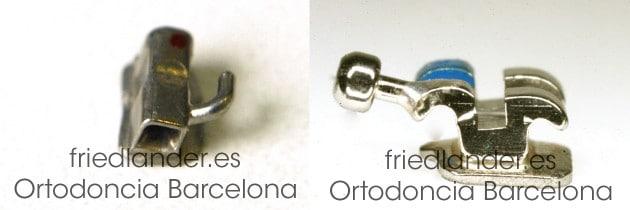 ¿Bandas de ortodoncia o tubos molares? 2