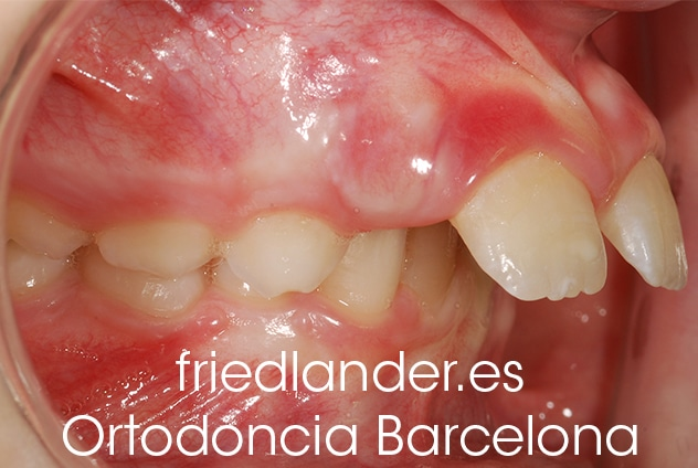 ¿Cuándo es el momento adecuado para tratar una clase II (mandíbula retruida)? información para el dentista general y el paciente 2