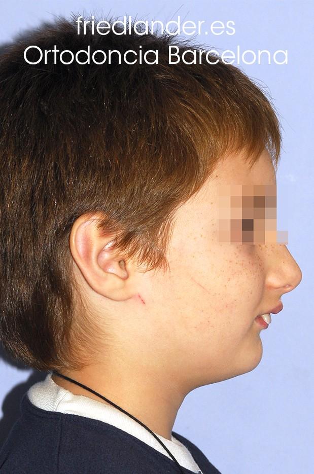 ¿Cuándo es el momento adecuado para tratar una clase II (mandíbula retruida)? información para el dentista general y el paciente 1