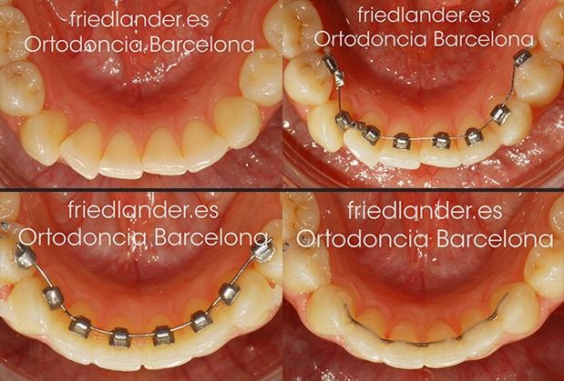 TIGGLE - nuevo sistema de ortodoncia lingual invisible de fuerzas ultra ligeras 4