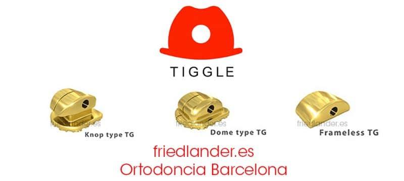 TIGGLE - nuevo sistema de ortodoncia lingual invisible de fuerzas ultra ligeras 1