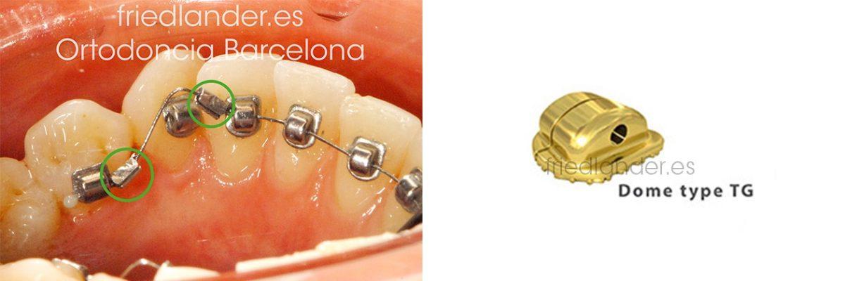 TIGGLE - nuevo sistema de ortodoncia lingual invisible de fuerzas ultra ligeras 3