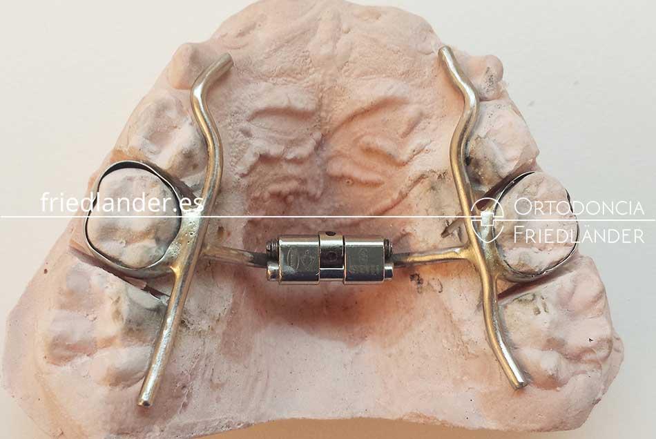 Ortodoncia en niños - Tratamiento de los problemas de anchura de la boca 6