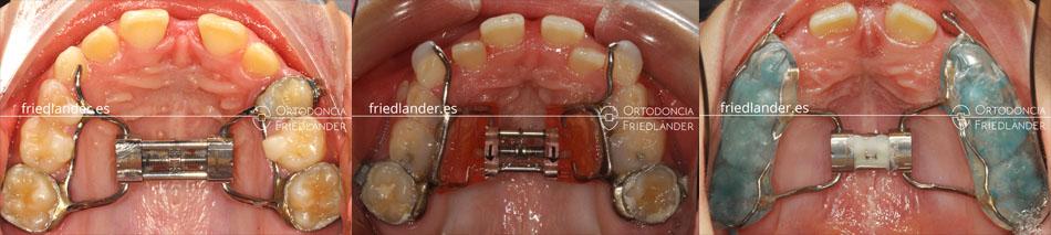 Ortodoncia en niños - Tratamiento de los problemas de anchura de la boca 5