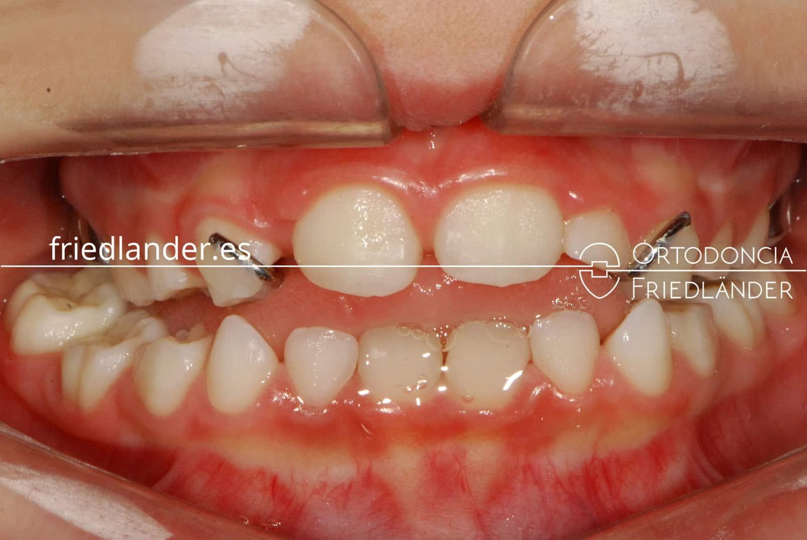 Ortodoncia en niños - Tratamiento de los problemas de anchura de la boca 2
