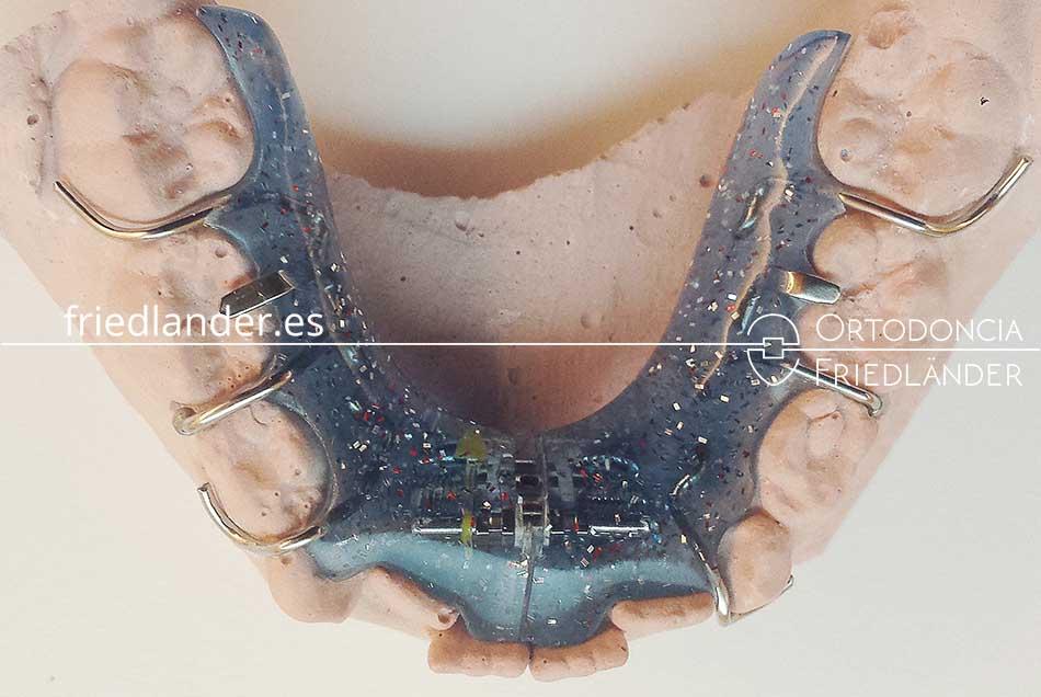 Ortodoncia en niños - Tratamiento de los problemas de anchura de la boca 3
