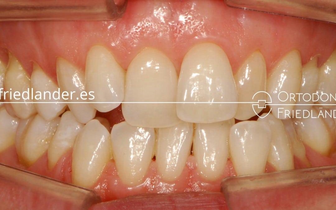 Tratamiento con Invisalign (Clase II, mordida abierta, arcadas estrechas y apiñamiento) – Caso 37 1