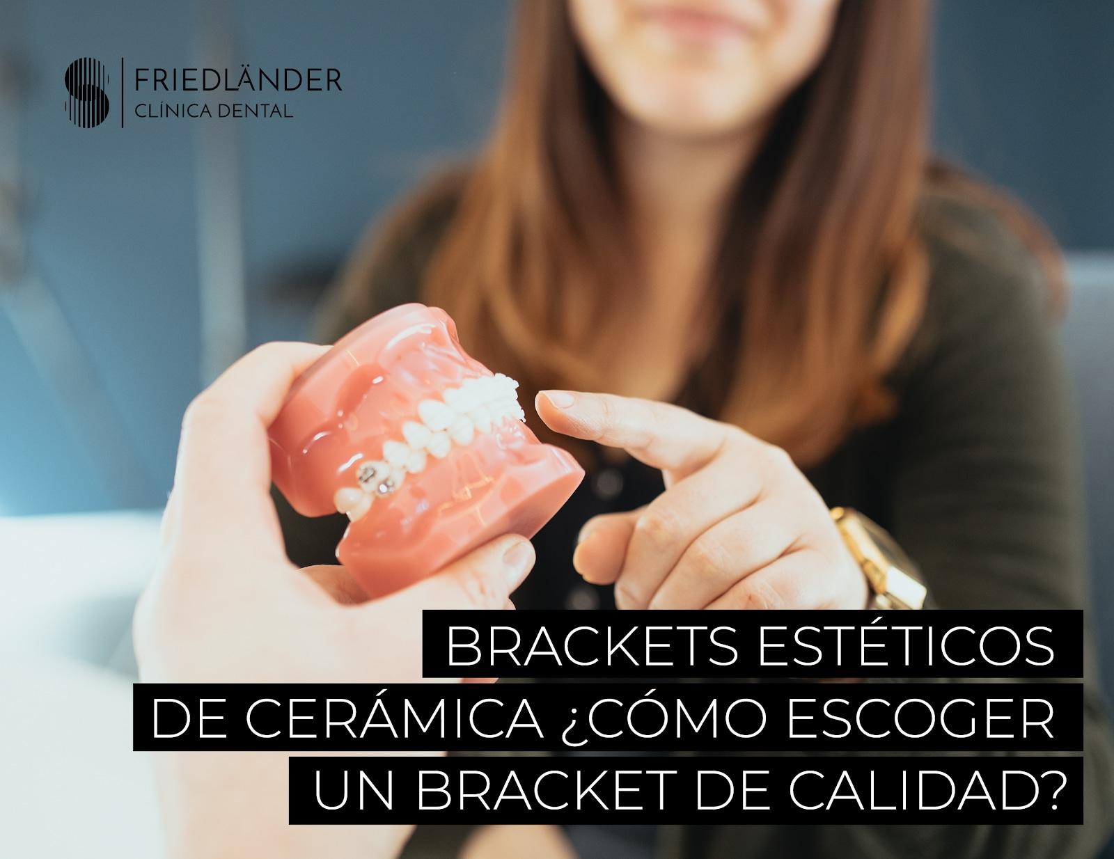 brackets estéticos de cerámica